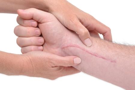 хирургическое удаление рубцов