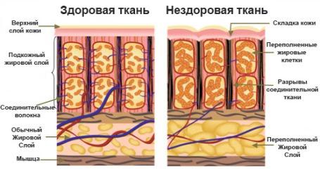 Симптомы фиброзного целлюлита
