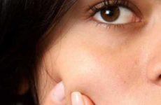 Домашнее лечение подростковых угрей