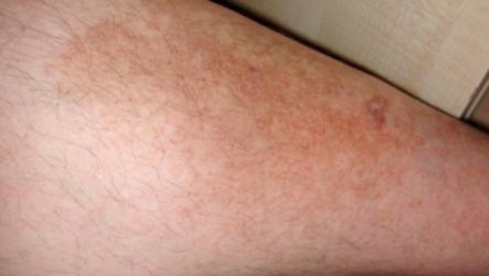 Темные пятна на коже ног и коленях. Как справиться с этим недугом?