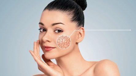 Как убрать лопнувшие капилляры на лице